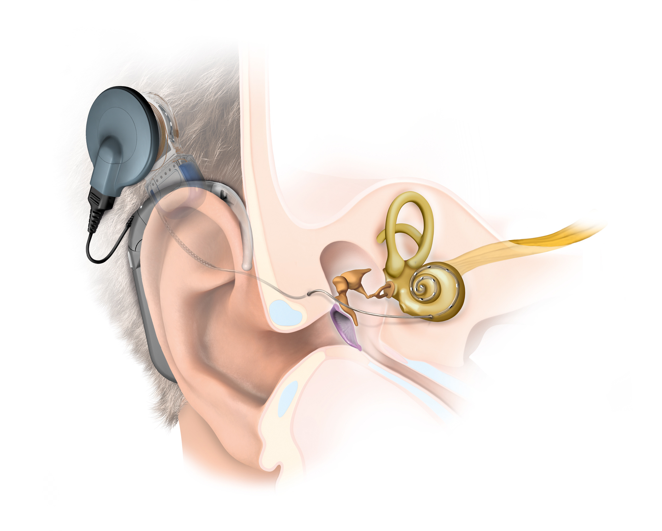 A Case Study of Cochlear Implant in Children