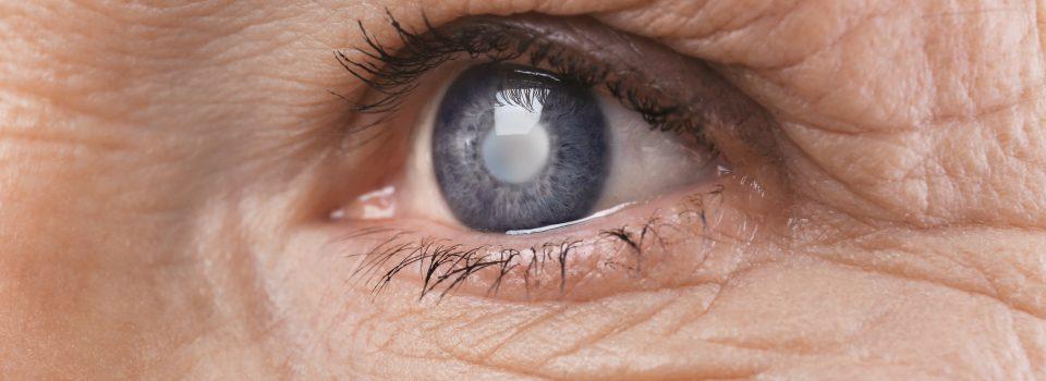 lens after cataract surgery