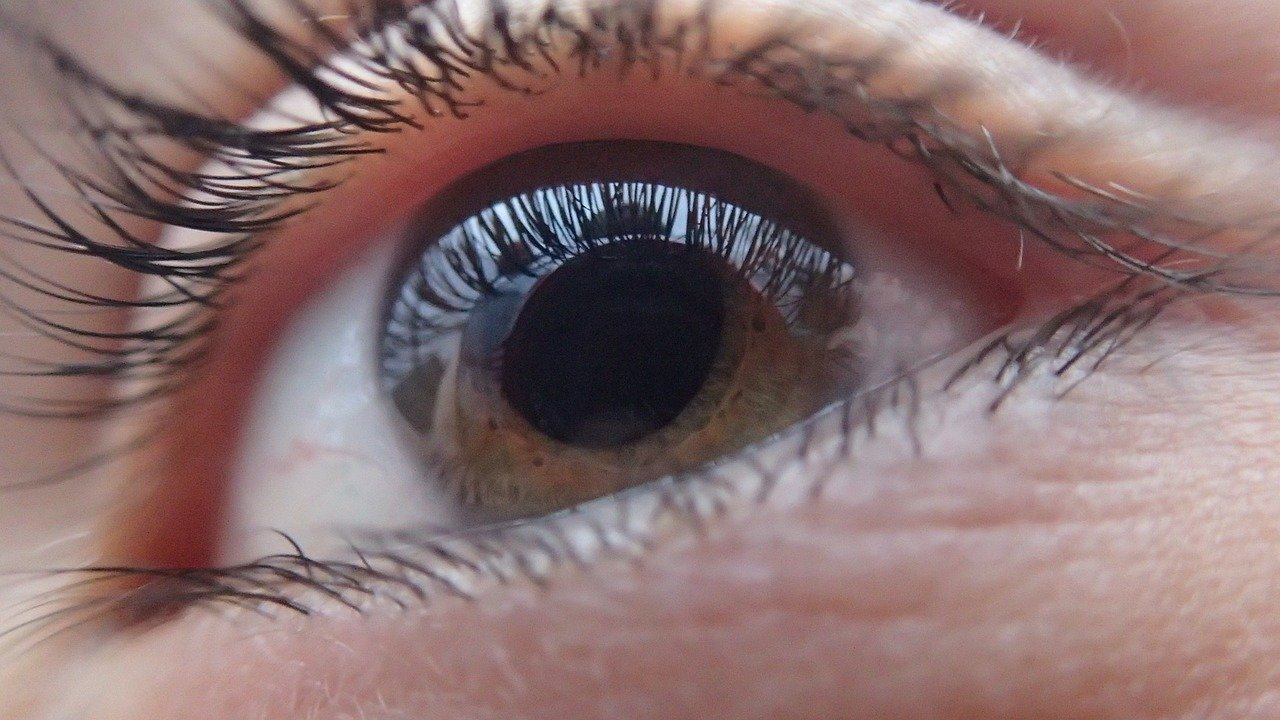 Role of Optometrist in Glaucoma: Assessment and Management