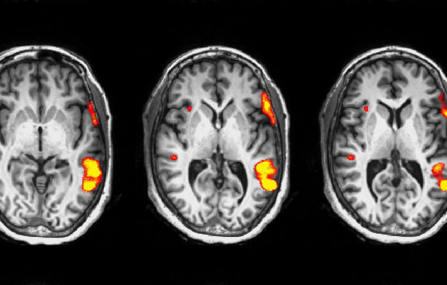 Measuring Brain Activity: Design, Acquisition, and Analysis of fMRI data