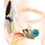 Cochlear Implantation in Incomplete Partition type II