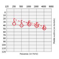audiometria oido derecho