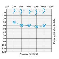 audiometria oido izquierdo