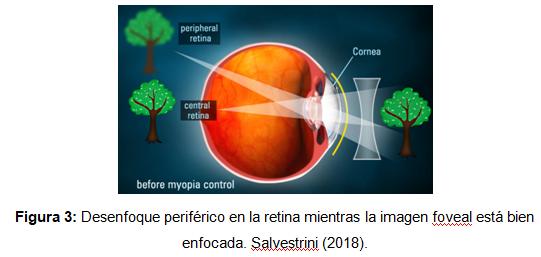 127d35996b Así, las lentes de ortoqueratología reducen el desenfoque hipermetrópico de  la imagen periférica lo que reduce el aumento de la elongación del ojo por  lo ...